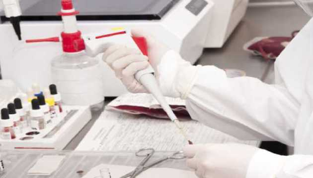 A Person Checking Blood Samples in the Laboratory Room.